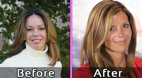 flipping vegas fake amy yancey before plastic surgery flipping vegas photos
