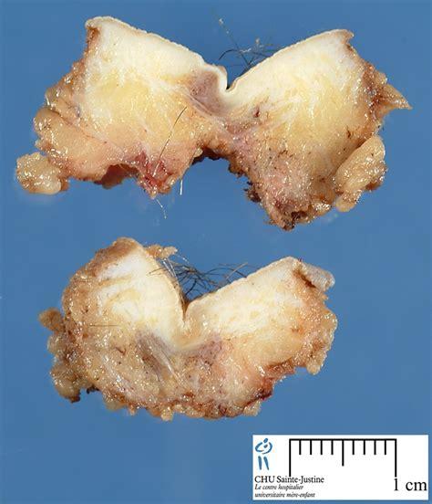 pilonidal cyst pilonidal cyst pictures