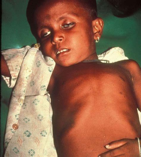 dehydration in children best 46 dehydration in children images on