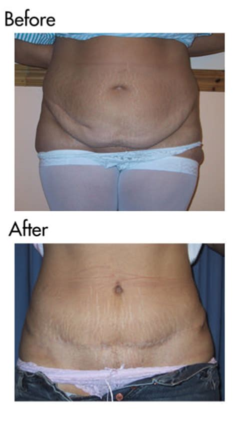 When Can You A Tummy Tuck After C Section by Tummy Tuck Manchester Enjoy A Flat Tummy With Abdominoplasty