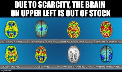 Brain Meme Generator - brain scans imgflip