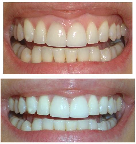 white teeth whiten teeth crest white strips before after