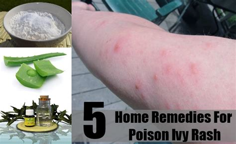 home remedies for poison rash treatments and