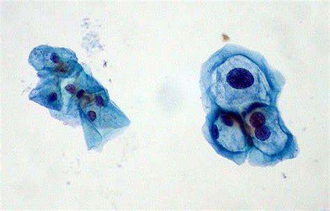 pap test papilloma virus hpv human papilloma virus std hpv warts