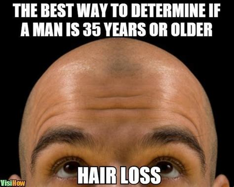 Receding Hairline Meme - receding hairline meme memes