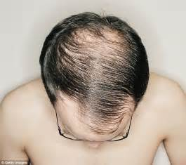 20 month hair thinning on top spencer stevenson man who beat baldness advises a list celebrities on hair transplants daily