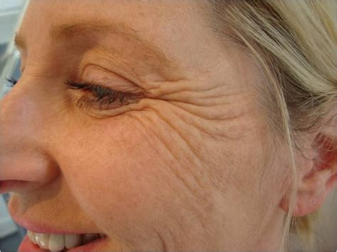 crow s feet causes and treatment