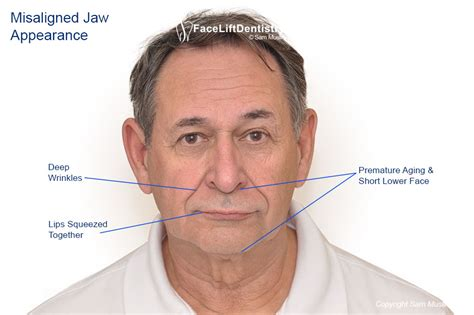 what are the causes and symptoms of jaw pain ehow uneven bite and misaligned jaw treatment
