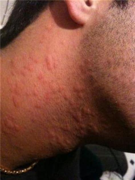 rash on neck hives rash pictures