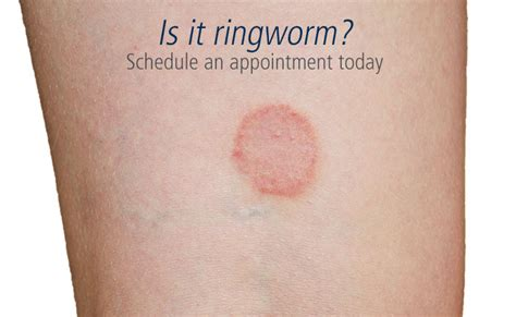 ringworm treatment image gallery ringworm