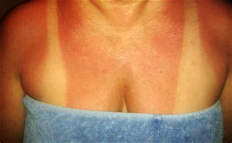 banana boat sunscreen reaction yucatan adventure s eco travel guide blog august 2013
