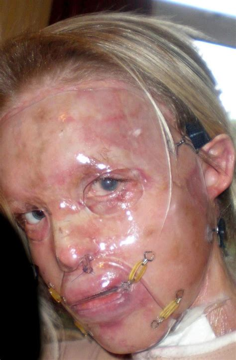 Acid Boyfriend piper acid attack