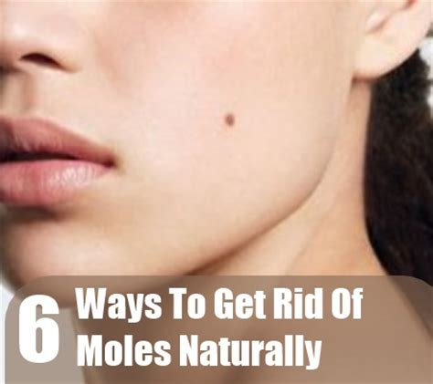 how to get rid of moles naturally home remedies for