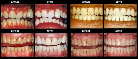 the gallery for gt stained teeth from smoking