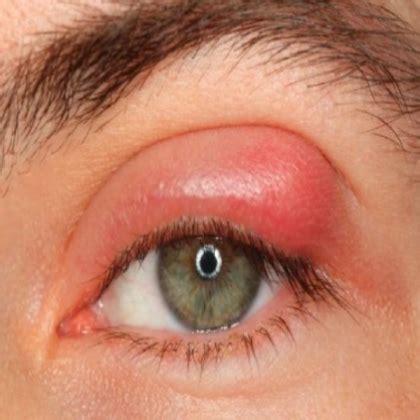 eyelid stye
