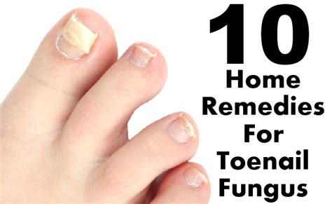 home remedies for foot fungus 10 home remedies for toenail fungus style presso