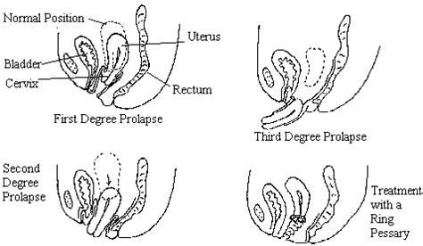 diagram of prolapsed uterus document moved
