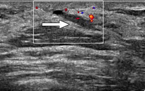 allattamento al seno dolore interno imaging ecografico senologia diagnostica senologia