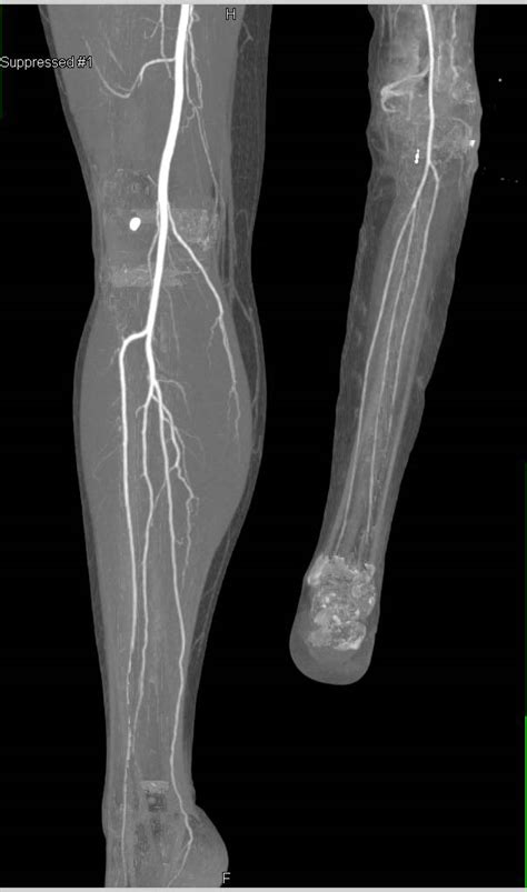 CTA Runoff in Patient with Reimplanted Lower Extremity