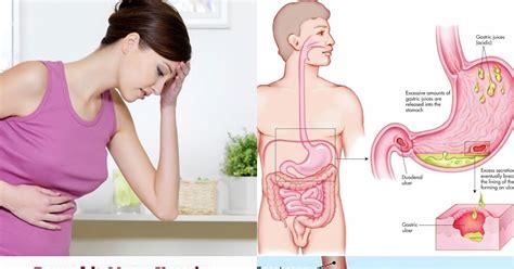 Madu Bio Cerna Spesial Pencernaan Maag Radang Usus Liver Cerna madu cerna b2 untuk maag jual madu cerna denpasar