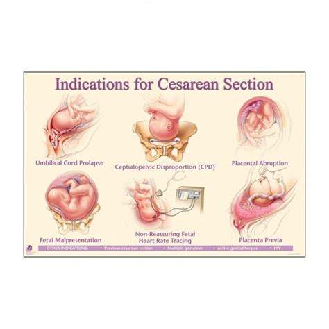 what are the reasons for c section indications for caesarean section laminated chart 90822