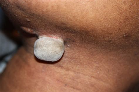 painful keloids and challenging keloid removal expert 226
