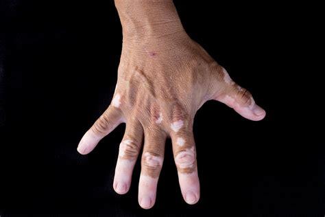 vitiligo images what is vitiligo vitiligo causes symptoms
