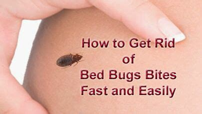 rid  bed bug bites real  effective advice