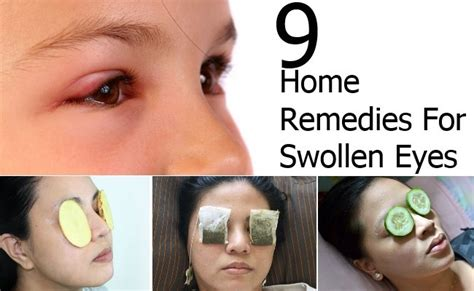 9 home remedies for swollen style presso