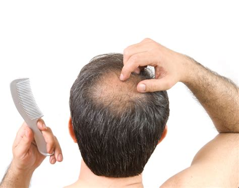 what percentage of men lose hair alopecia areata treatment for hair loss in maryland
