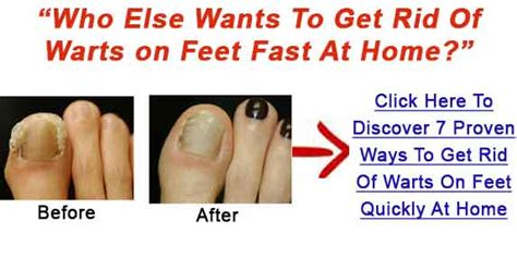 How To Get Rid Of Planters Warts by Remove Warts Simple Ways To Get Rid Of Warts