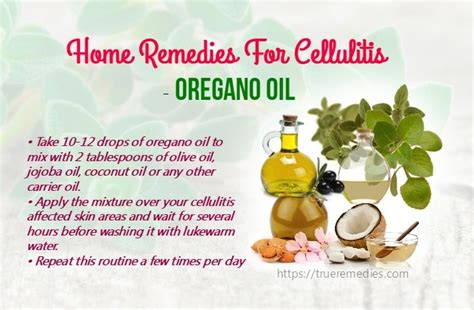 23 best home remedies for cellulitis infection on legs