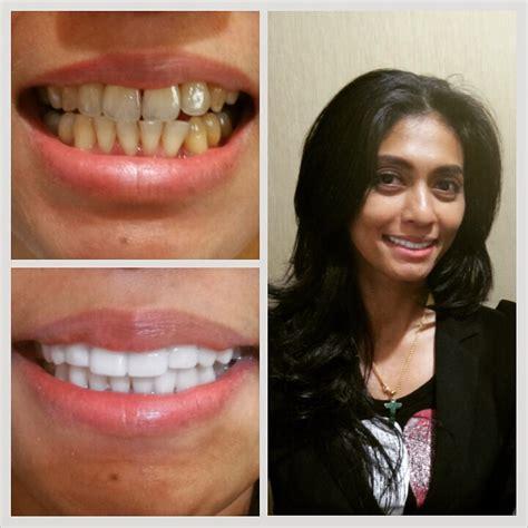 Biaya Pemutihan Gigi Di Jakarta klinik pemutihan gigi di jakarta audy dental