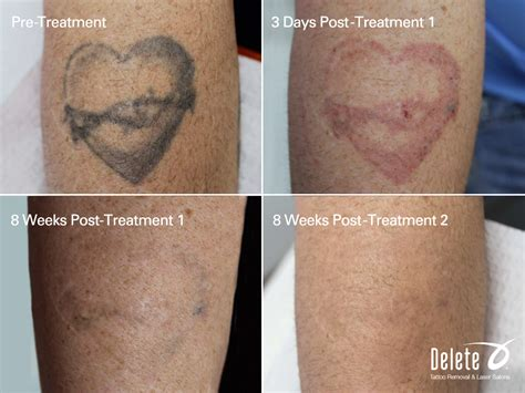 types of tattoo removal see ya later 2015 delete removal laser salon