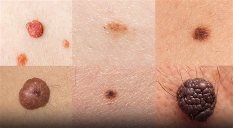 artificial intelligence  detect skin cancer