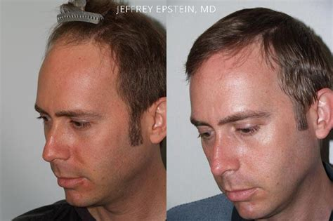 hair plugs for men hair transplants for men photos miami fl patient 38485