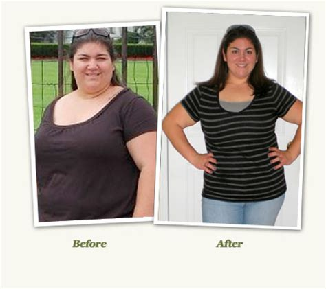 gastric bypass testimonials success stories with before gastric bypass testimonials success stories with before