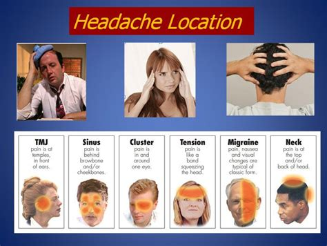 Migraines Allergies And Work by 16 Best Images About Headache Locations On