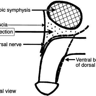 Brown S Regional Anesthesia Review Freesul 1 maximum doses for epidural caudal block c houck