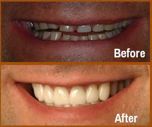 Smile Before Talk smile gallery dental before after virginia l gregory dmd llc