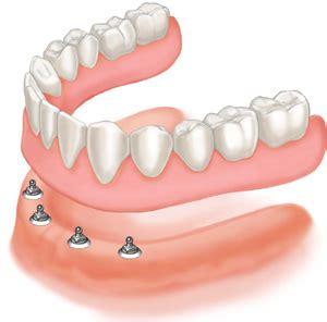 comfortable dentures protetika