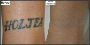 tattoo removal process guaranteed work tattoo removal w picosure melbourne fl
