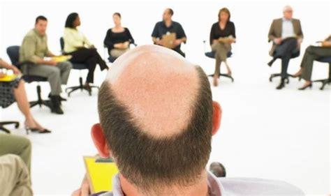 addio calvizie il libro della pgeditore i capelli calvizie ed alopecia addio grazie all insulina