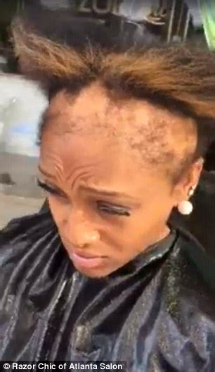 weaves for the bald atlanta hairstylist shares videos of clients suffering