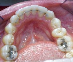 Harga Clear Ortho 1000 images about retainers on braces