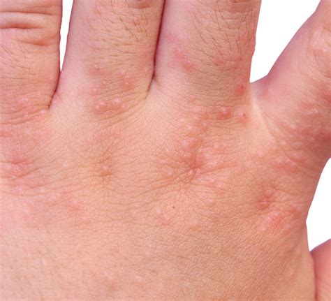 skin problems 12 common skin problems and solutions s health