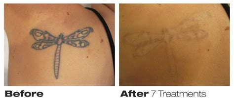 precision laser tattoo removal opening hours 76