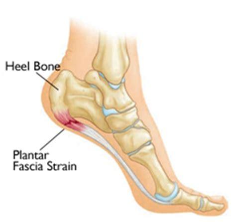 treating heel and plantar fasciitis masterton foot