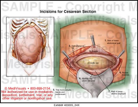 cost for c section delivery incisions for cesarean section medical exhibit medivisuals
