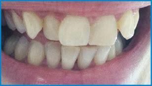 dental care london philips zoom teeth whitening